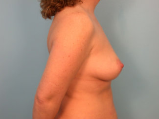 Mommy Makeover: Modern Abdominoplasty & Breast Augmentation