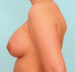 Breast Augmentation