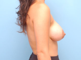 Breast Lift without External Scars: Correction of Saggy Breasts with Breast Implants Only