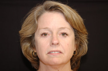 Upper and Lower Eyelid Surgery - Blepharoplasty