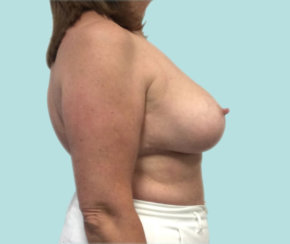 Breast Reduction, Breast Lift