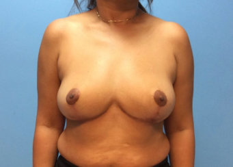 Removal of Breast Implants, Full Breast Lift