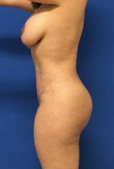 Creating a Narrow Waist: Body Contouring & Fat Transfer