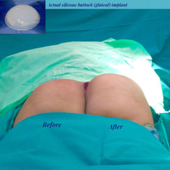 Buttocks Augmentation with Implants