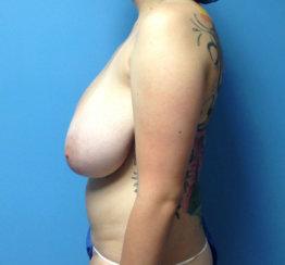 Minimal Scars Breast Reduction & Lift