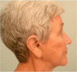 Facelift, Neck Lift & Endoscopic Brow Lift