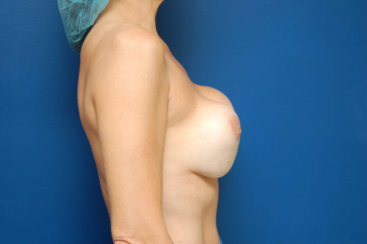 Breast Revision, Capsulox Contracture Correction