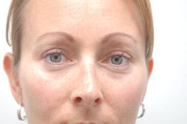 Eyelid Surgery (Upper Blepharoplasty)