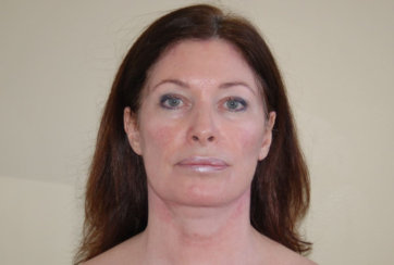 Facelift, Endoscopic Brow Lift & Endoscopic Forehead Lift