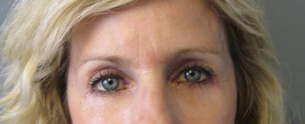 Eyelid Surgery (Blepahroplasty) & Facial Rejunevation with Deep Chemical Peel