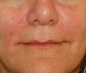 Correction of Facial Wrinkles with Restylane