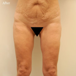 Medial Thigh Lift: Addressing Loose Skin & Thigh Gap