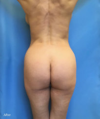 High Definition Liposuction & Body Contouring Fat Transfer to the Buttocks, Tummy Tuck
