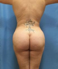 The Art of Brazilian Butt Lift & Body Contouring