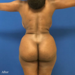 Liposuction of Abdomen and Lower Back