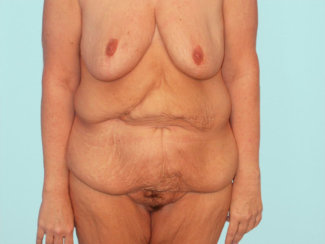 Fleur De Lis Abdominoplasty After Massive Weight Loss