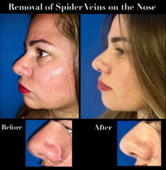Permanent Removal of Spider Veins on the Nose