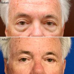 Blepharoplasty: Lower Eyelid Surgery