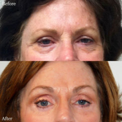 Endoscopic Brow Lift, Upper & Lower Bleharoplasty (Eyelid Surgery)