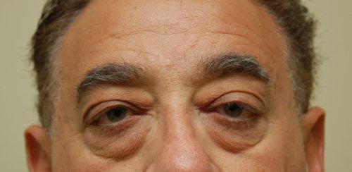 Upper & Lower Eyelid Surgery (Blepharoplasty)