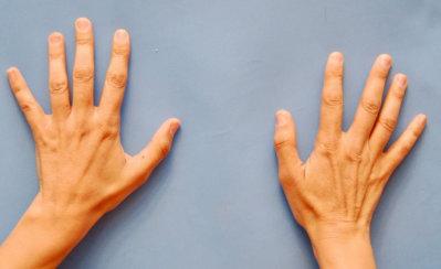 Hands Rejuvenation: Fat Transfer to Hands