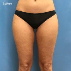 Circumferential Liposuction of Hips & Thighs