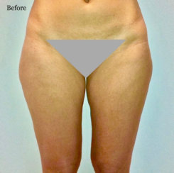 Getting Rid of Saddlebags (Outer Thighs) & Inner Thighs