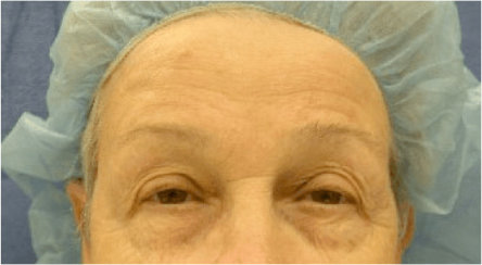 Facelift, Neck Lift & Endoscopic Brow Lift