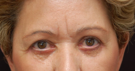 Upper and Lower Eyelid Surgery (Upper and Lower Blepharoplasty)