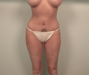 Liposuction & Modern Tummy Tuck