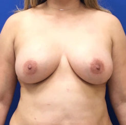 Breast Lift without External Cuts, Correction of Breast Asymmetry, Breast Augmentation