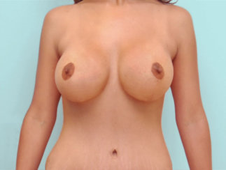 Breast Augmentation with Breast Lift at The Same Time, Augmentation & Mastopexy, Vertical Lift, Mommy Makeover