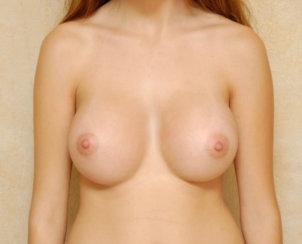 Breast Augmentation & Breast Asymmetry Correction
