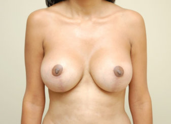 Breast Augmentation & Breast Lift