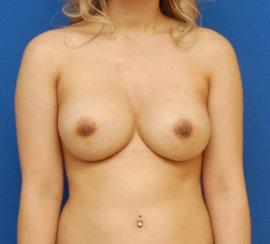 Breast Augmentation Revision: Breast Asymmetry, Nipple Deformity Correction & Capsular Contracture Correction