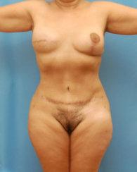 Breast Reconstruction & Abdominoplasty