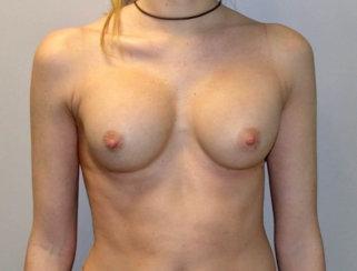 Breast Augmentation Revision/Correction