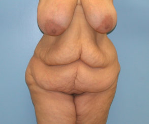 Large Standard Abdominoplasty