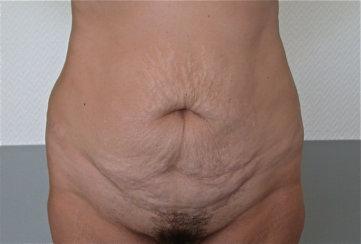 Abdominoplasty or Tummy Tuck