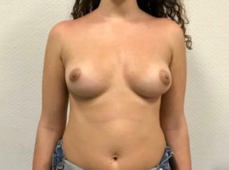 Breast & Nipple Asymmetry Correction with Breast