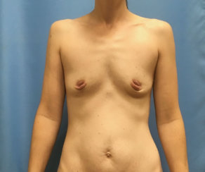 Correction of Saggy Breast with Implants & Internal Lift. Correction of Breast Asymmetry. Correction od Inverted Nipples