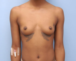Perfect Teardrop Shape: Breast Augmentation