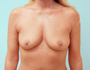 Breast Augmentation & Correction of Breast Asymmetry