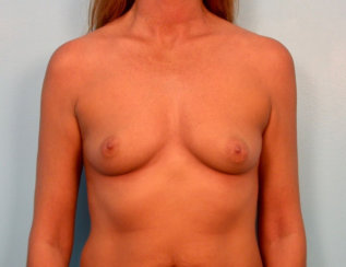 Breast Augmentation & Breast Droopiness Correction