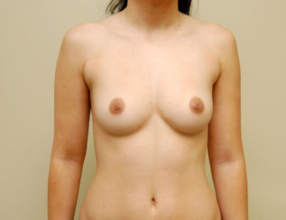 Breast Augmentation: Immediate Results and Results Shown After More than 10 Years Ago