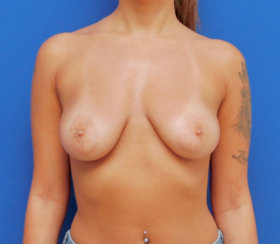 Breast Lift & Breast Augmentation
