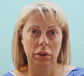 Facelift  and Neck Lift and Lower Eyelid Suregry and Browlift
