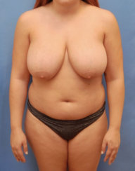 Breast Reduction, Breast Lift, Liposuction of Arms, Liposuction & Body Contouring of Abdomen and Flanks