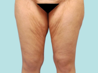 Medial Thigh Lift: Addressing Skin Laxity of Inner Thighs