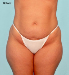 Liposuction of Saddlebags (Outer Thighs) & Inner Thigs